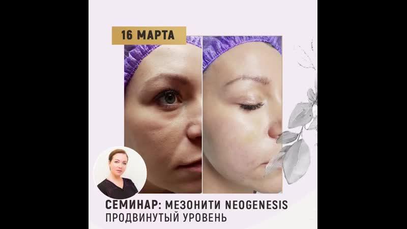 16 марта семинар Мезонити Neogenesis Лектор Казакова Наталья Владимировна