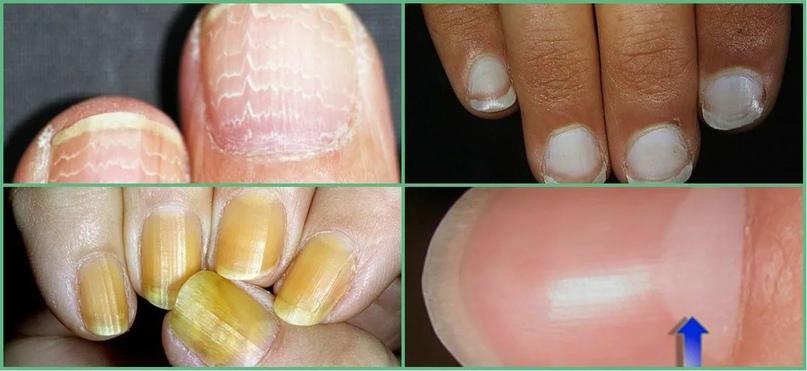 О каких болезнях можно узнать по ногтям., изображение №7