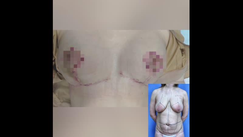Подтяжка груди и абдоминопластика месяц после сочетанной операции