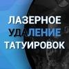 Лазерное удаление татуировок   Санкт-Петербург