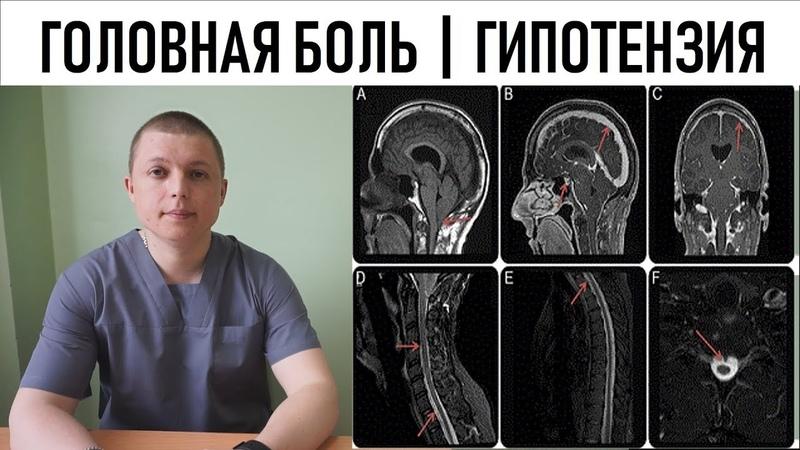 ГОЛОВНАЯ БОЛЬ ЛЕЧЕНИЕ ВНУТРИЧЕРЕПНАЯ ГИПОТЕНЗИЯ Headache and intracranial hypotension
