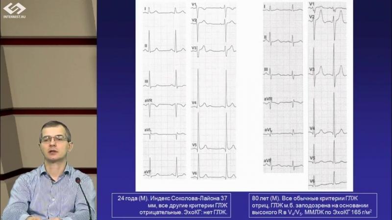 Увеличение камер сердца