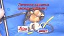 Лечение кариеса 26 зуба через микроскоп!