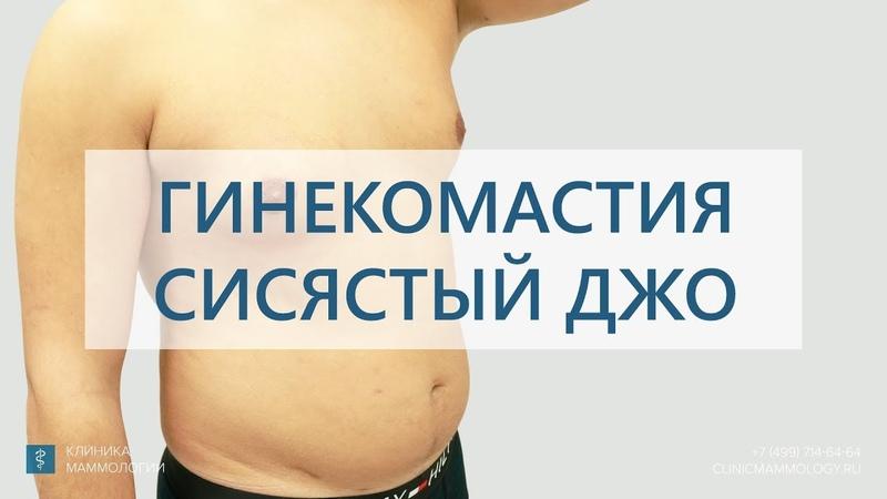 Гинекомастия. Сисястый Джо. Результат лечения гинекомастии.