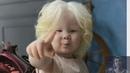 У казахов родились 2 необычные девочки-альбиносы. Как сложилась их судьба.