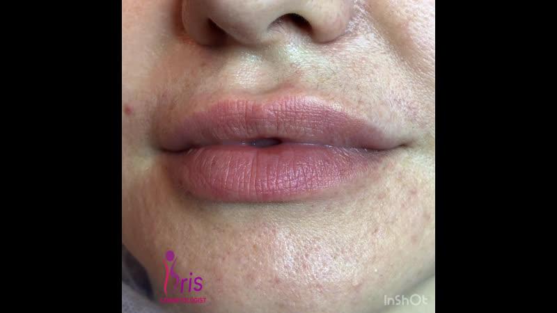 Исправление ассиметрии губ