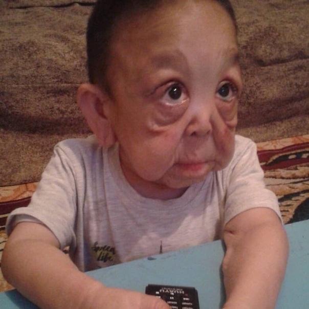 Мальчика Ернара называют «казахским Бенджамином Баттоном». Несмотря на то, что ему нет даже 10, он выглядит как пожилой. Все из-за вялой кожи. Причина синдрома до конца не установлена, поэтому