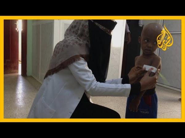 🇾🇪 اليونيسيف اليمن من أسوأ الدول بالنسبة للأطفال