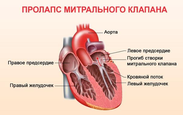 Синдром ДСТ у детей и его влияние на сердечно-сосудистую систему, изображение №3