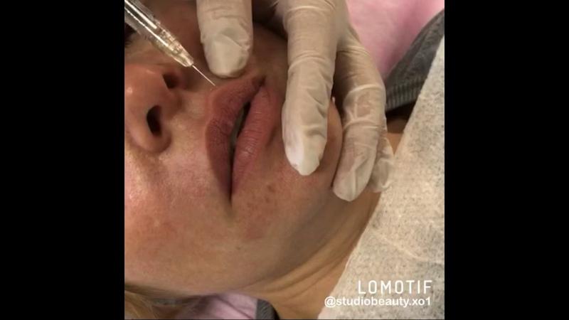 Видео от Илоны Игнатьевой